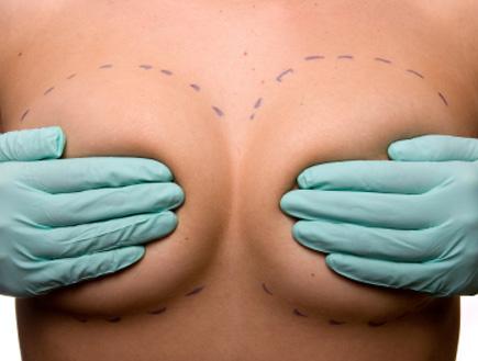 שרטוט על חזה אישה לקראת ניתוח (צילום: istockphoto)