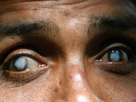 צילום מקרוב של עיוור (רויטרס) (צילום: רויטרס)