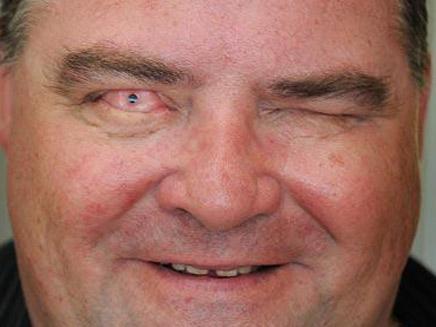 אדם החזירו לו את ראייתו בזכות השן שלו (צילום: טלגרף)