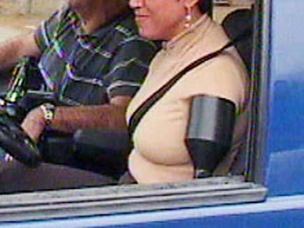 קטועת יד (צילום: חדשות 2)