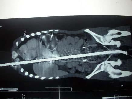 צילום רנטגן של קלים עלי כשמוט ברזל בגופו (צילום: Metro)