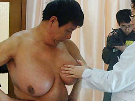 גבר בעל חזה אישה (צילום: הסאן)