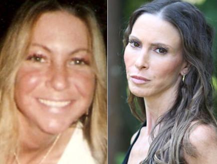 לורה פילרלה - לפני ואחרי
