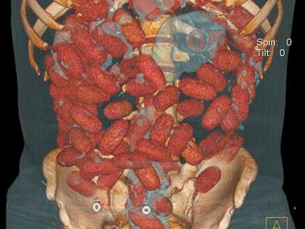 72 קפסולות של סמים - בבטן (צילום: AP)