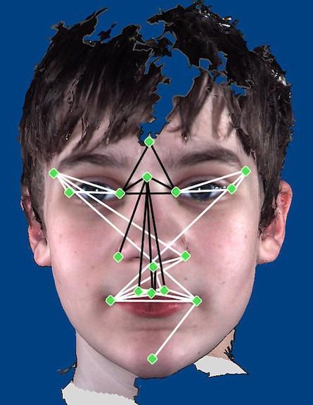 תווי פנים אוטיזם