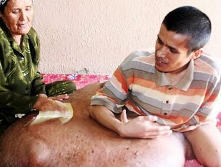 האיש עם הגידול הגדול בעולם זקוק לעזרה (וידאו WMV: nydailynews.com)