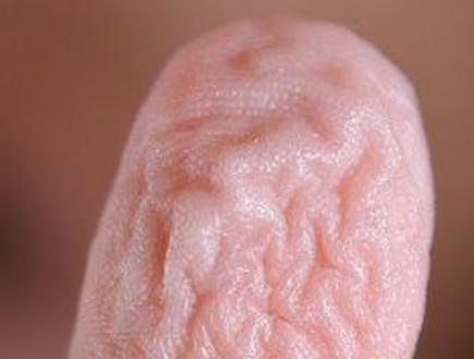 למה באמת האצבעות מתקמטות באמבטיה? (וידאו WMV: ויקיפדיה)