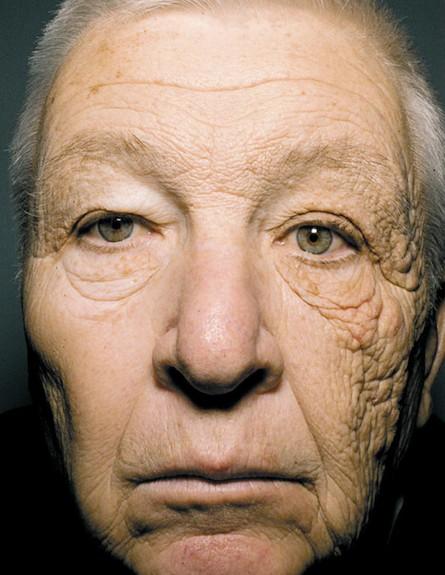 הזדקנות מואצת