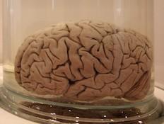 מוח בצנצנת (צילום: getty images ,getty images)