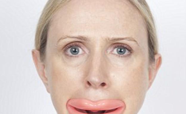 מתקן שפתיים (צילום: dailymail.co.uk ,dailymail.co.uk)