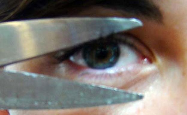 איבד עין בגלל חניה. אילוסטרציה (צילום: דניאל נחמיה, חדשות 2)