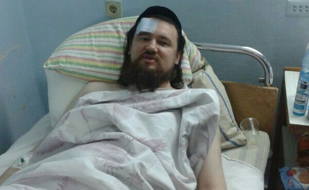 גליקמן אחרי התקיפה (צילום: בנימין גוטפארב)