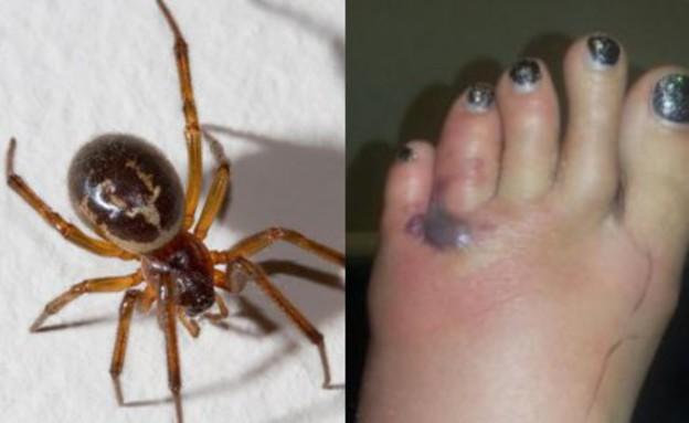 ננשכה על ידי עכביש (צילום: SWNS)