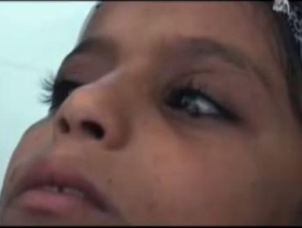 Yemen: la ragazza che piange lacrime di pietra