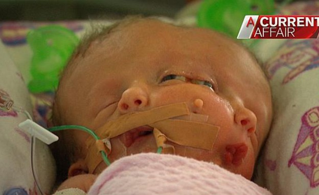 תינוק פנים כפולות (צילום: Channel 9)