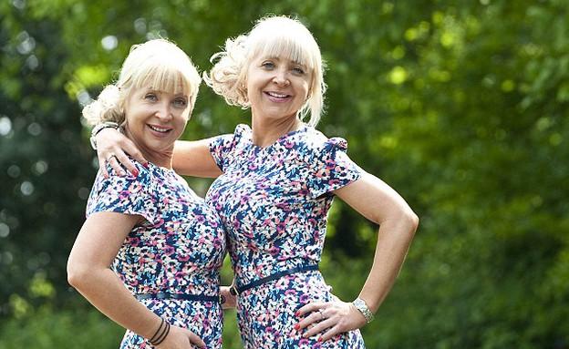 תאומות מנותחות יחד (צילום: dailymail.co.uk)