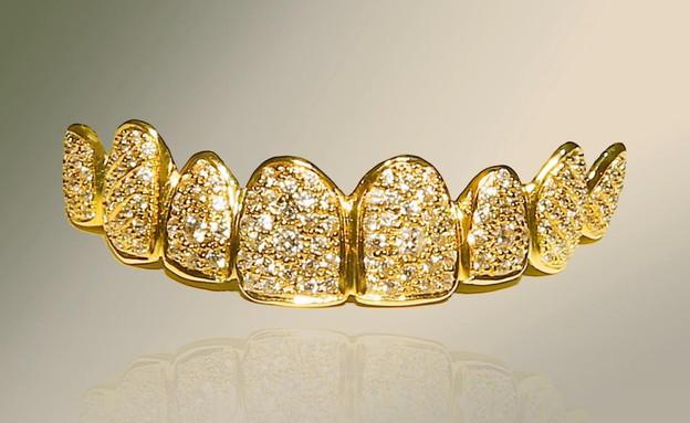 שיניים יקרות (צילום: Asia Press)