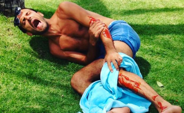 אלירז שדה נפצע (תמונת AVI: instagram ,instagram)