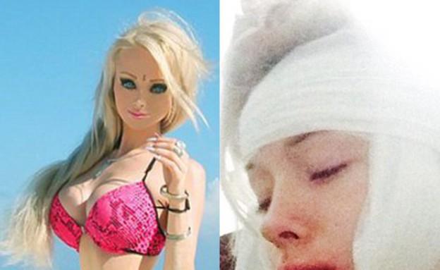 ברבי אנושית פצועה (צילום: east2west news)