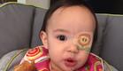 תינוקת עם רטייה לעין (צילום: http://www.reddit.com/user/Gfgrubb)