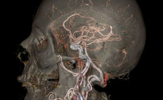 בתוך הגוף (צילום: GE Healthcare)