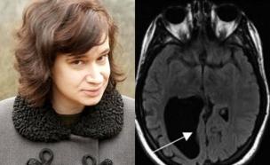 חור במוח (צילום: nypost.com)