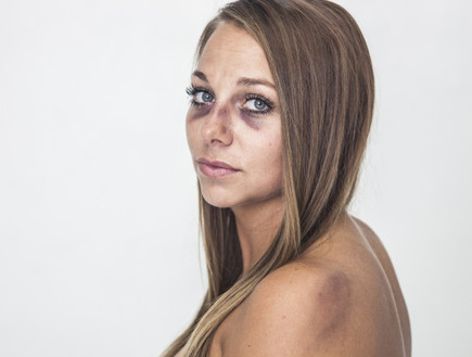 דוגמנית מוכה (צילום: metro.co.uk ,mako)