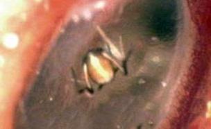 עכביש באוזן (צילום: mirror)