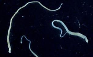 תולעת מעיים (צילום: wikimedia user: Filip em)