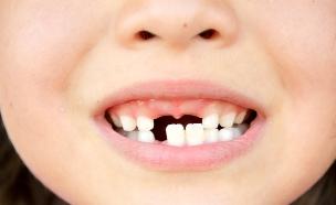 שיניים  (צילום: shutterstock ,shutterstock)