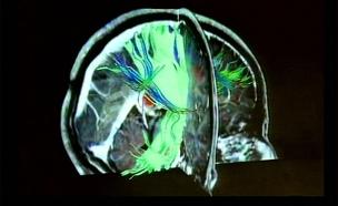 שבץ מוחי (צילום: חדשות 2)
