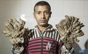 איש עץ (צילום: ZUMA)