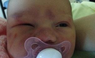 נפצעה בלידה (צילום: צילום ביתי)