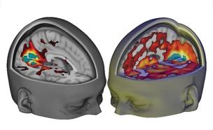 המוח תחת השפעה (מימין) וללא השפעה (משמאל) (צילום: CNN)