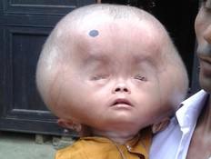 תינוק ראש נפוח (צילום: Exclusivepix)