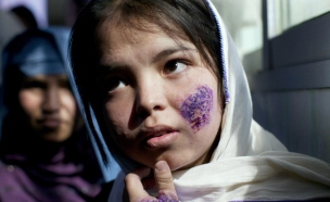 התפשטות מחלת הלישמניאזיס (צילום: Paula Bronstein/Getty Images)