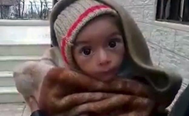 תינוק רעב בעיירה הנצורה