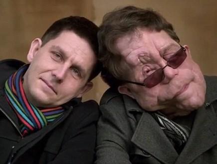 תאומים זהים עם מום (צילום: BBC)