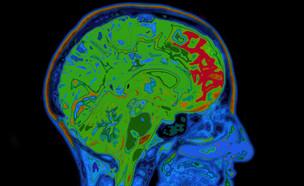 מוח (צילום: shutterstock: SpeedKingz)