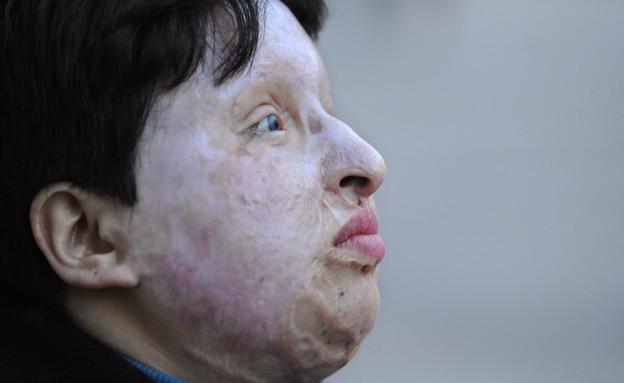 אמאנה בהארמי, הייתה קורבן לשפיכת חומצה (צילום: אימג'בנק/AFP)