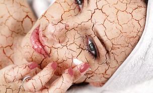 עור יבש (צילום: shutterstock ,shutterstock)