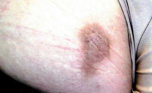 צלקת של ניתוח תוספתן (צילום: shutterstock: Barabasa)