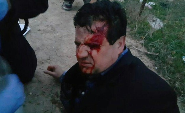 איימן עודה נפצע בעימותים (צילום: פסגת המעודכנים)