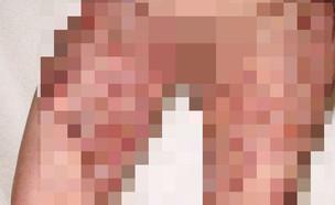 גילוח קטלני, חיידק טורף (צילום: הוטספוט)
