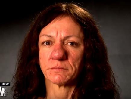 פמלה ניתוח אף (צילום: Youtube/The Doctors)