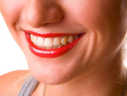 פה מלא שיניים של בחורה מחייכת עם אודם (צילום: nilgun bostanci, Istock)