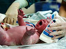 תינוק צורח מיד לאחר לידתו (צילום: 1joe, Istock)
