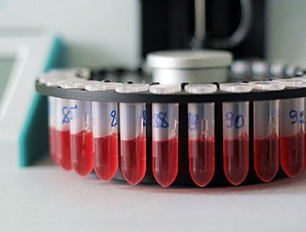 מבחנות דם במעבדה (צילום: Zoonar RF, Istock)