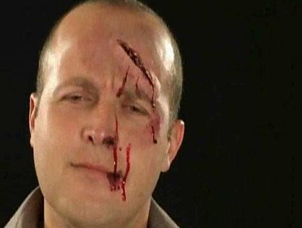 פורים - פצוע (וידאו WMV: mako)