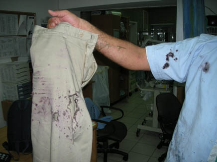 המכנסיים שנאכלו מהחומצה